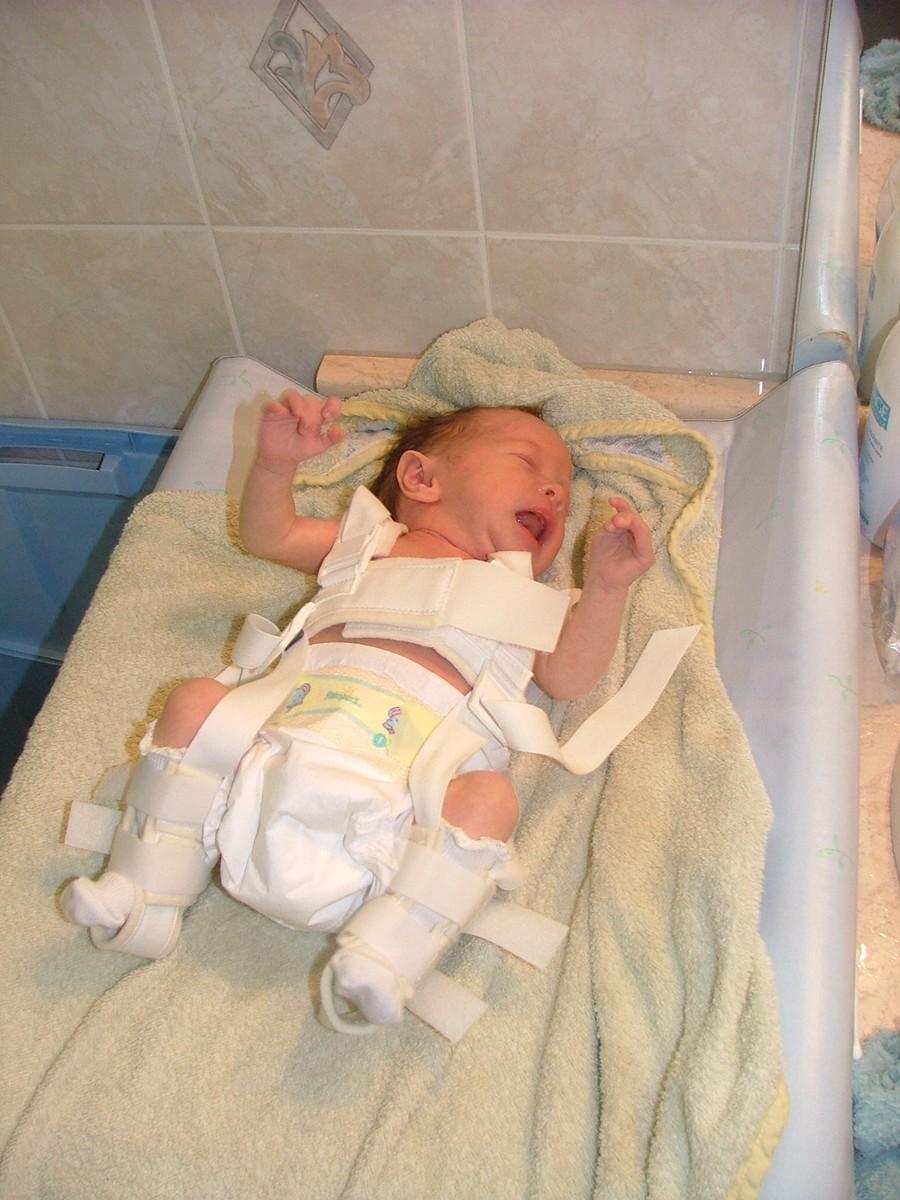 Notre vie avec la luxation cong nitale de la hanche les - Bebe ne veut plus dormir dans son lit ...